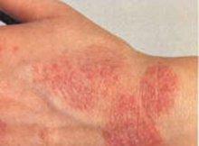 Пятна на коже красного цвета чешутся что это может быть