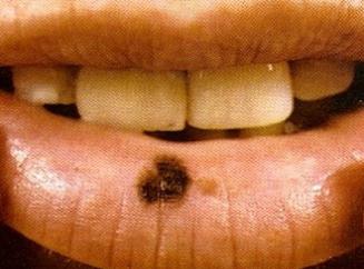 пупырышки на коже возле ногтя аллергия