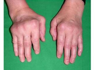 Причины развития заболеваний суставов
