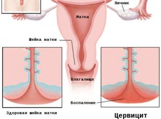 Что такое эндометриоз