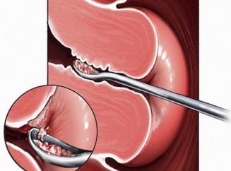 Цервикальный эндометриоз симптомы и лечение