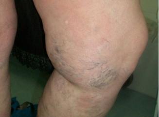Самомассаж ног при варикозе
