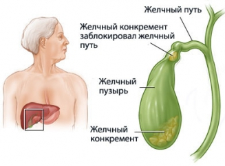 Желчный пузырь: нормы размеров на УЗИ